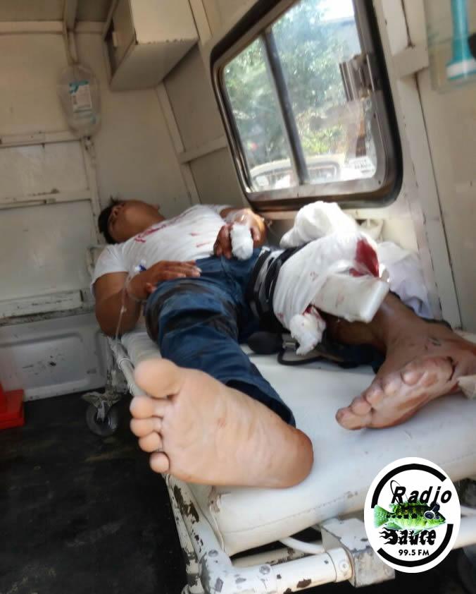 Accidente de tránsito deja herida a 2 personas heridas, uno de ellos podría perder una pierna